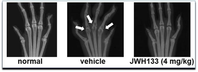 As setas apontam a ação osteoclástica nos ossos periarticulares, é possível observar a destruição óssea induzida pela artrite e a preservação, das mesmas articulações, após tratamento com agonista canabinoide em modelo experimental. [PuBMed] http://www.ncbi.nlm.nih.gov/pmc/articles/PMC4243420/pdf/12891_2013_Article_2224.pdf