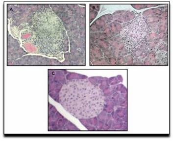 Redução do infiltrado inflamatório caracterizado pela redução do número de linfócitos em lâminas de anatomia patológica, corada por HE. A) Sem tratamento. B) Veículo inerte. C) tratamento com CBD. [PubMed] http://www.ncbi.nlm.nih.gov/pmc/articles/PMC2270485/